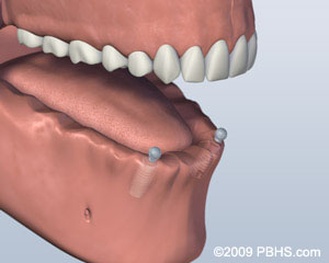 2. Implants Placed