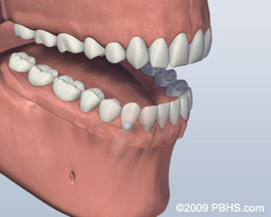 3. Denture Attached
