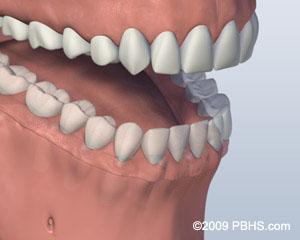 3. Denture Attached