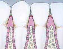 Cross-Section-Gingivitis