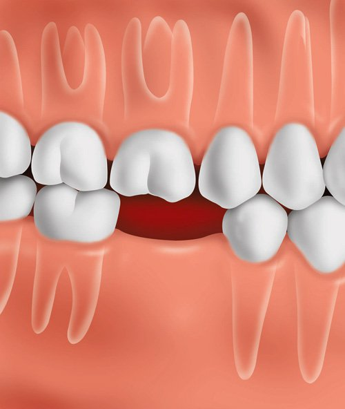 Position of teeth immediately after a tooth is lost
