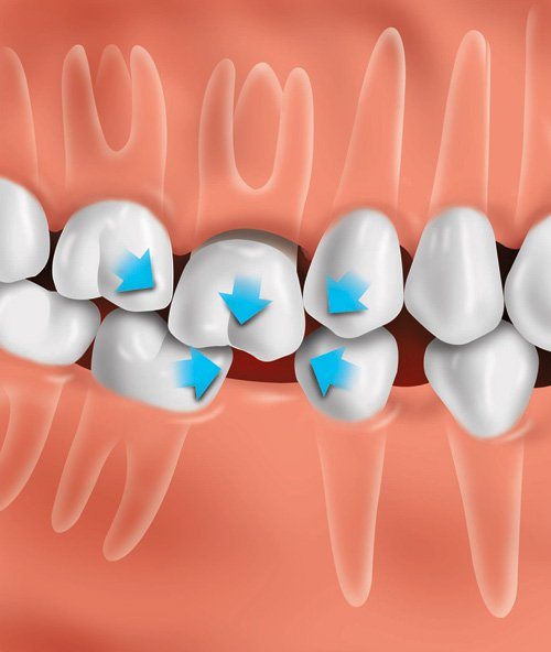 If the tooth is not replaced, other teeth can drift out of position and change the bite. Shifting teeth can possibly lead to tooth decay and gum disease.