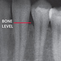 X-ray showing supporting bone.