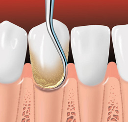 Scaling removes plaque and tartar from below the gumline.