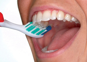 2) Brush the outer tooth surfaces, keeping the toothbrush at a 45-degree angle to the gums.
