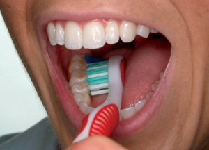 3) Brush the inner tooth surfaces, still with the toothbrush at a 45-degree angle.