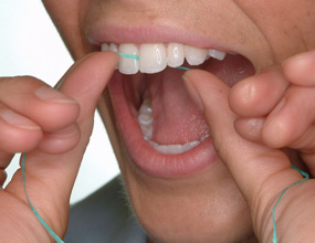 2) Hold the floss tightly between your thumbs and forefingers. Guide the floss between your teeth, using a gentle rubbing motion. To avoid hurting your gums, never snap the floss into gum tissue.