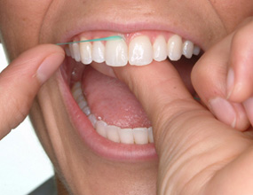 3) When the floss reaches the gum line, curve it into a C shape against one tooth. Gently slide it into the space between the gum and the tooth.