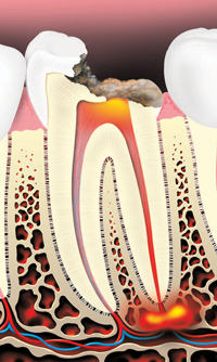 Tooth decay can cause an abscess (infection).