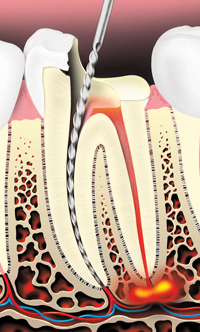 The decay is removed and an opening is made through the crown of the tooth into the pulp chamber.