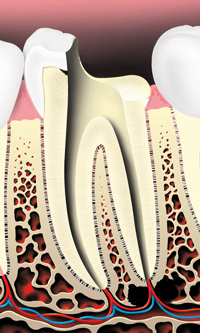 The pulp is removed and the root canals are cleaned and shaped.
