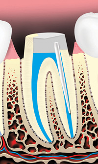 A metal or plastic rod or post may be placed in the root canal to help retain the core (filling) material, which supports the restoration (crown).